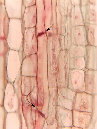 Phloem longitudinal section
